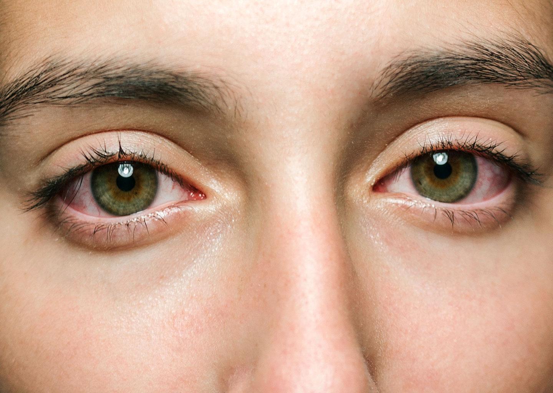 Düğün Stresi ile Oluşan Yorgun Yeşil Gözler